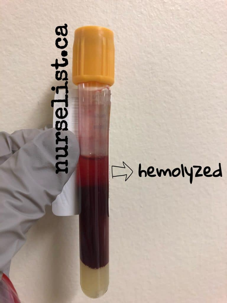 how does a hemolyzed blood sample looks like